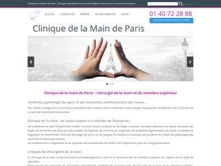 Clinique de la main à Paris - Chirurgie de la main - canal carpien