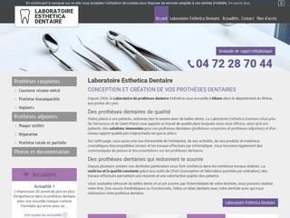 Prothèse dentaire en céramique près de Lyon - Esthética Dentaire