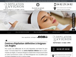 Épilation définitive pour homme à Avignon, Dépil'Tech