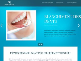 Blanchiment des dents pour un sourire ultra-bright