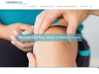 Tout sur l'arthrose du genou