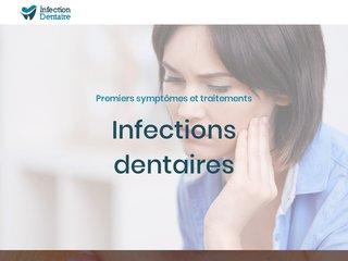 Infection dentaire, quelques symptômes