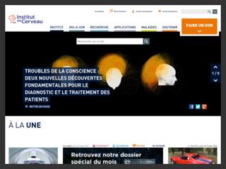 Institut du Cerveau,  tout connaître sur l'institut ICM