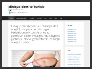 Chirurgie bariatrique Tunisie, chirurgie obesite en Tunisie